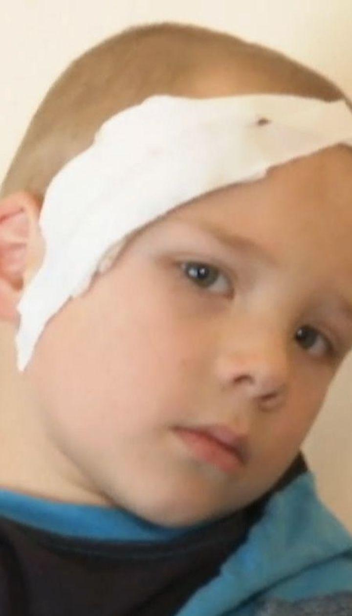 Кілька кілограмів бетону впали на голову першокласнику у шкільній їдальні