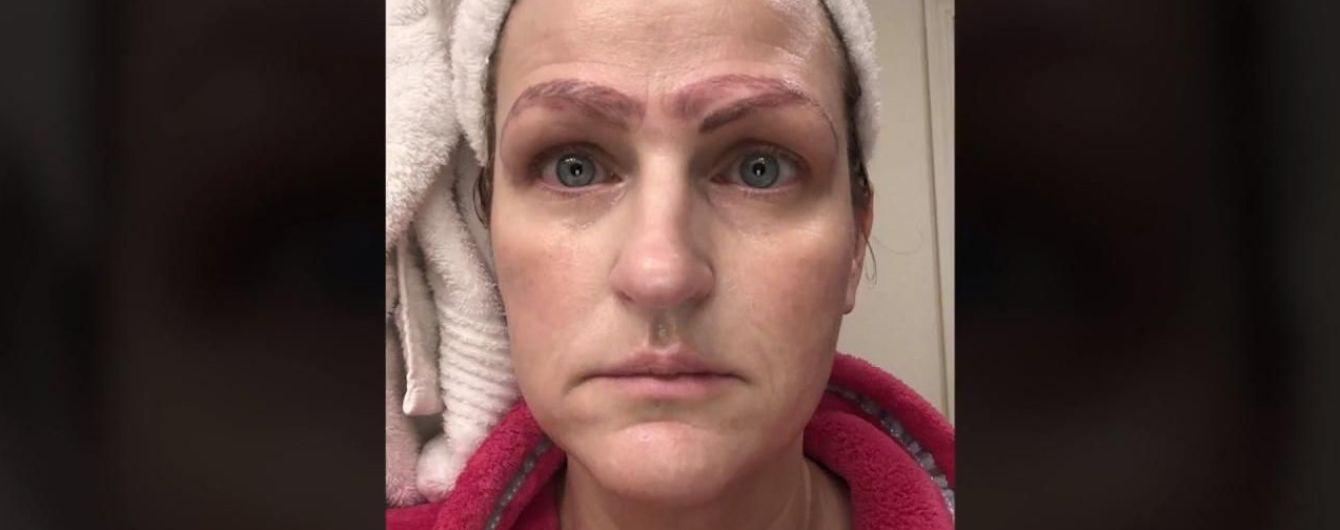 В США женщина осталась без парня и с четырьмя бровями из-за некачественной процедуры