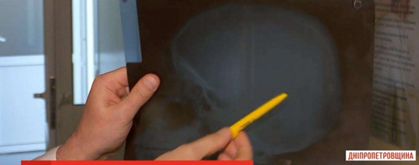 Зброя як метод виховання: на Дніпропетровщині хлопець прострелив голову школяреві