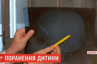 Оружие как метод воспитания: на Днепропетровщине парень прострелил голову школьнику