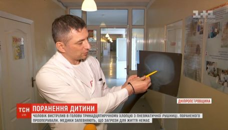 Чоловік на Дніпропетровщині вистрілив 13-річному хлопчику у голову