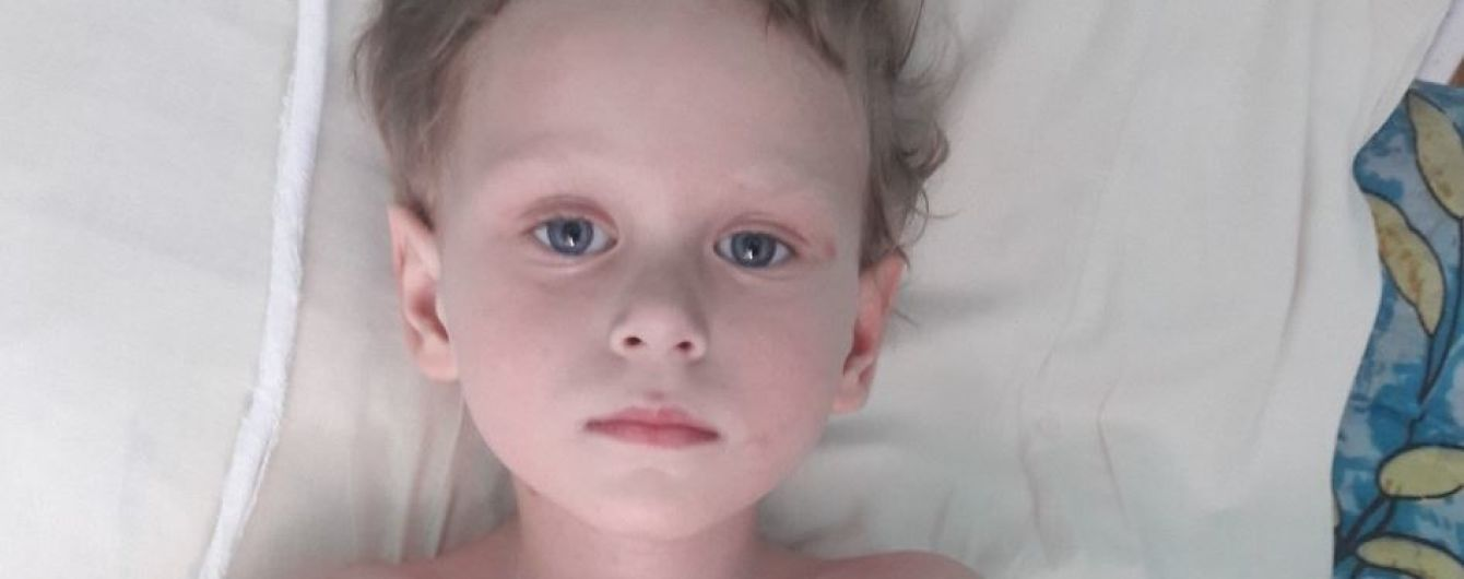 3-річна Зорянка мусить самотужки переносити всі труднощі через свою хворобу