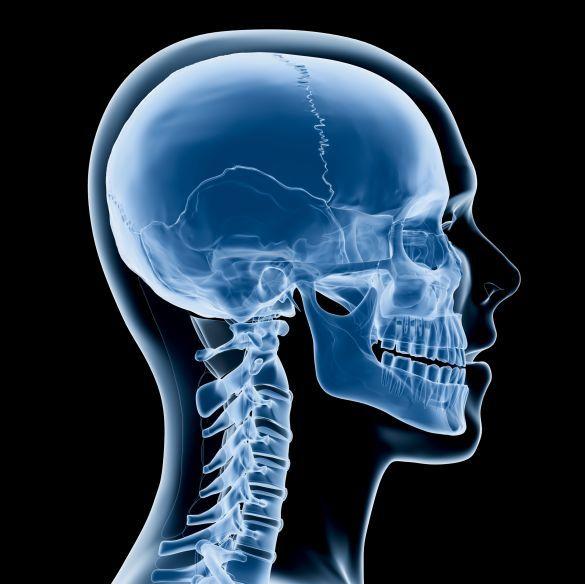 радіація в побуті, череп, пнг