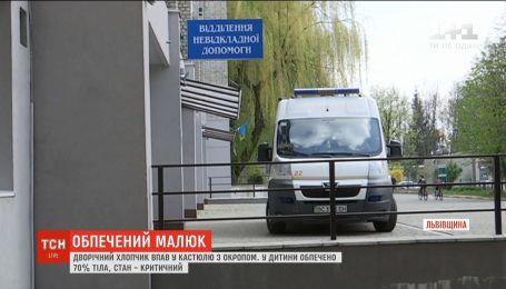 На Львівщині дворічний малюк упав в каструлю з окропом