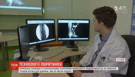 Украинские ученые напечатали на 3D-принтере стальные кости для девушки, которая не могла ходить