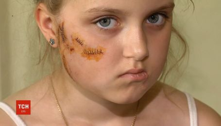 На Киевщине восьмилетнюю девочку разорвала собака
