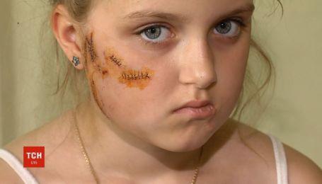 На Київщині восьмирічну дівчинку пошматував собака