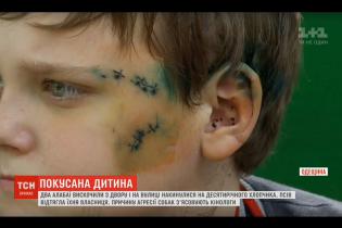 На Одещині алабаї напали на школяра: дитині наклали понад 20 швів