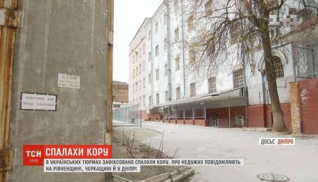 В следственном изоляторе Днепра по меньшей мере у шести арестантов диагностировали корь