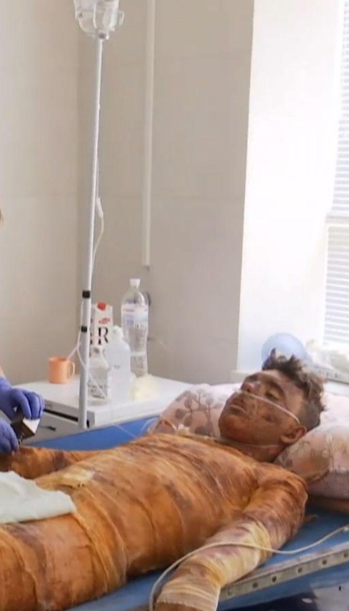 Харьковские врачи спасают жизнь 17-летнего студента, который получил мощный удар током