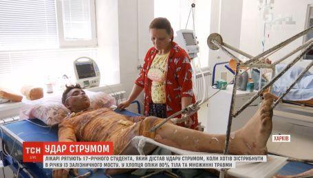 Лікарі в Харкові рятують життя студента, який дістав потужний удар струмом