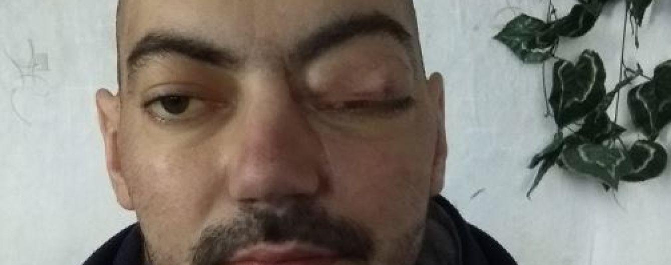 80 тисяч гривень потрібні на термінове лікування Сергію