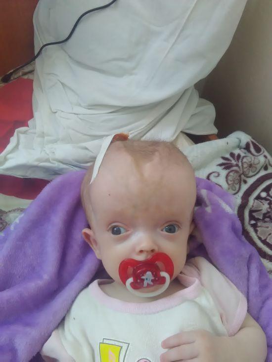 5-місячна Ангелінка потребує негайної допомоги