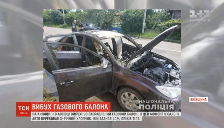 На Киевщине от взрыва газового баллона пострадал 3-летний мальчик