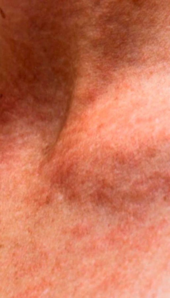 Что такое аллергия на солнце и как ее избежать