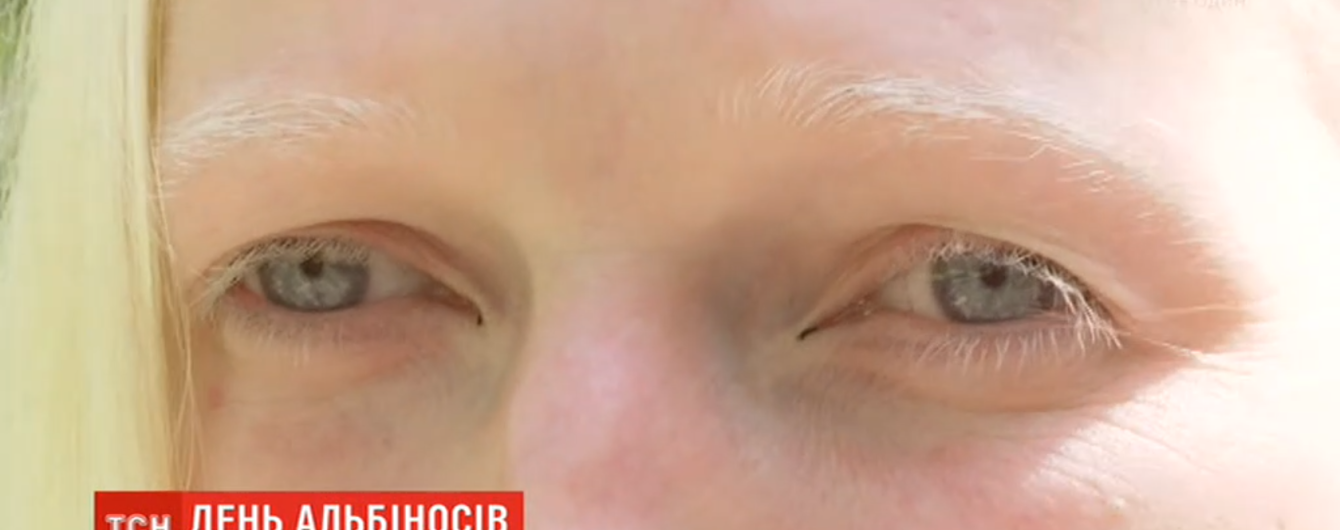Поцелованные Богом люди: как живется альбиносам в Украине