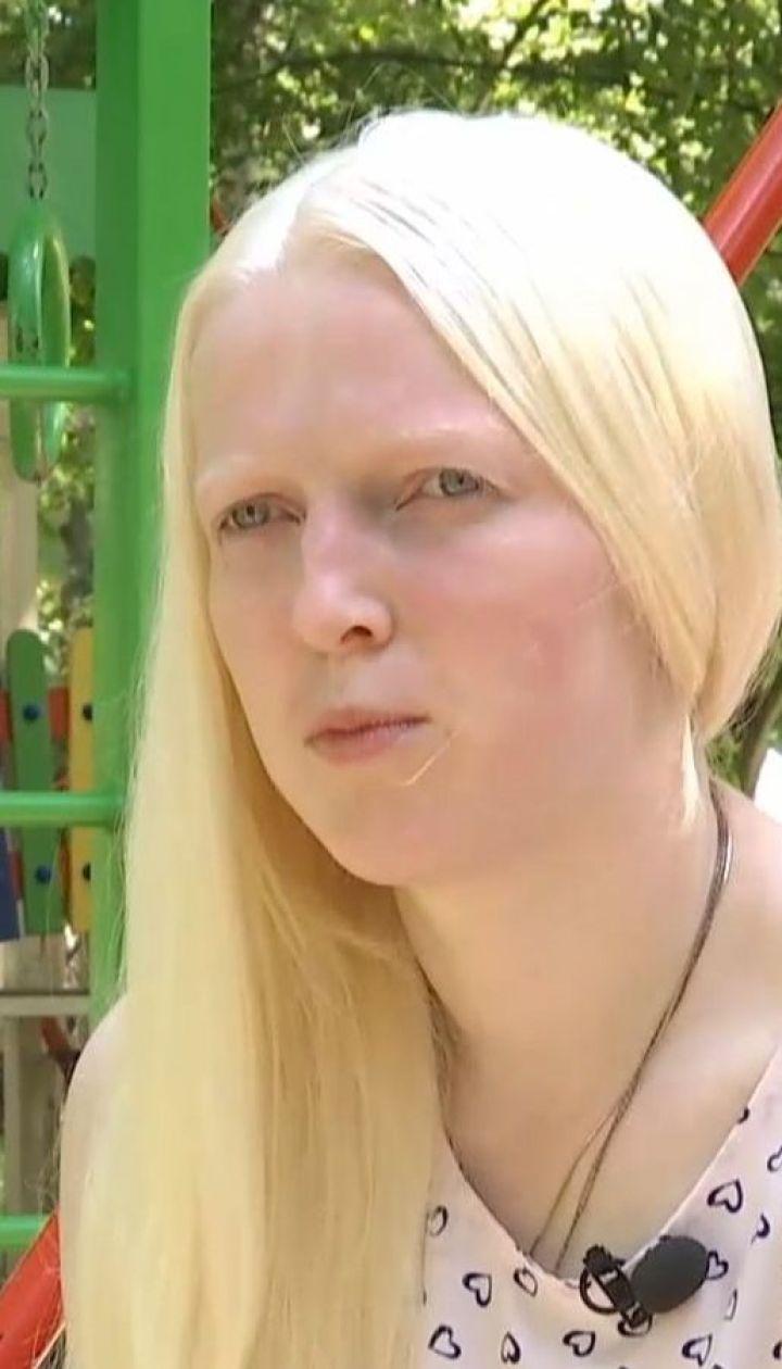Поцелованные Богом: кто такие альбиносы и как им живется
