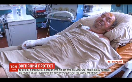 На Житомирщині підприємець скоїв самоспалення, бо місцева влада нібито хоче забрати бізнес
