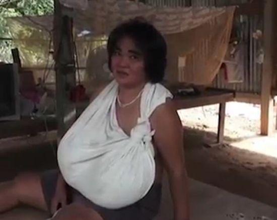 У Таїланді через загадкову аномалію у жінки стрімко виросли груди