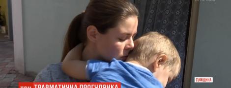 На Сумщине 2-летнего ребенка привалило незакрепленной скамейкой