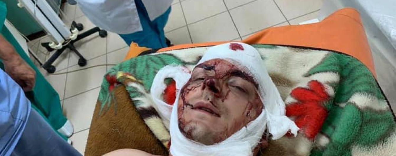 В Конотопі жорстоко побили ексмера та кандидата в депутати