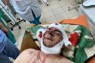 В Конотопе жестоко избили экс-мера и кандидата в депутаты