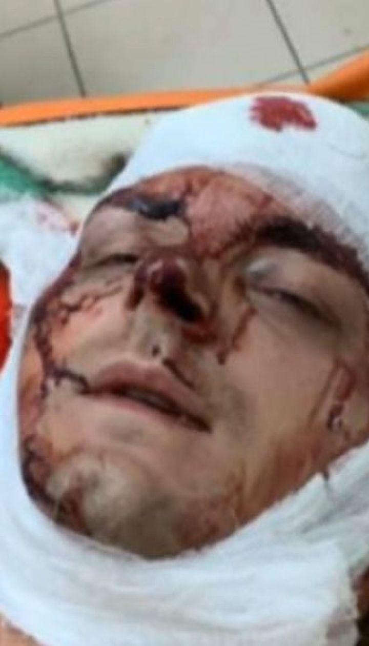 Поліція розслідує напад на Семеніхіна як замах на вбивство