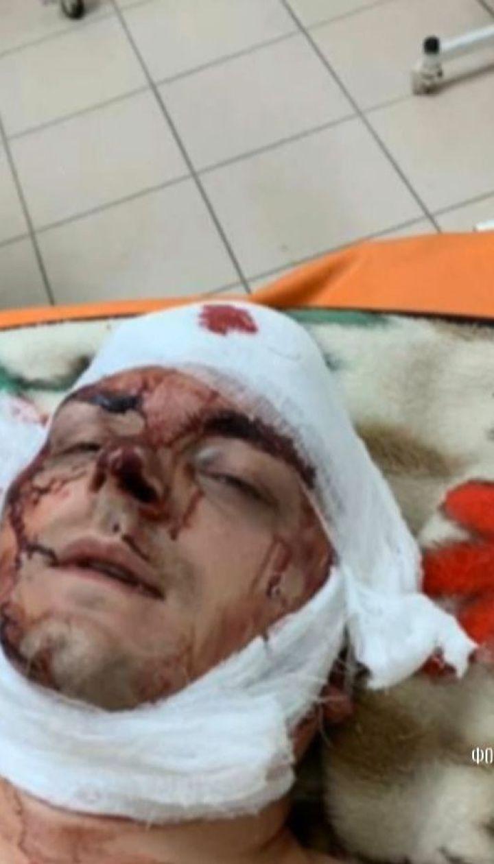 Полиция расследует нападение на Семенихина как покушение на убийство