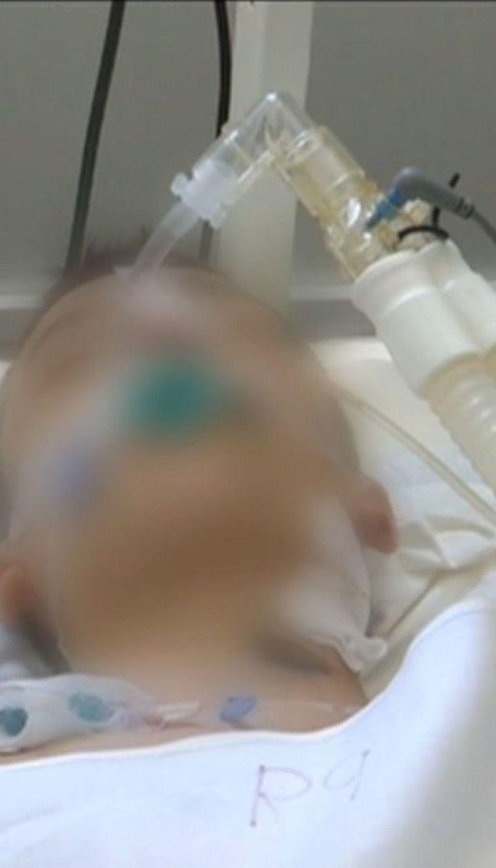 Раненого от взрыва гранаты подростка сняли с аппарата искусственной вентиляции легких