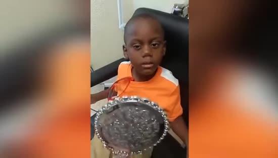 Хлопчик пережив рак ока. Брат зняв першу реакцію на власне відображення з імплантом