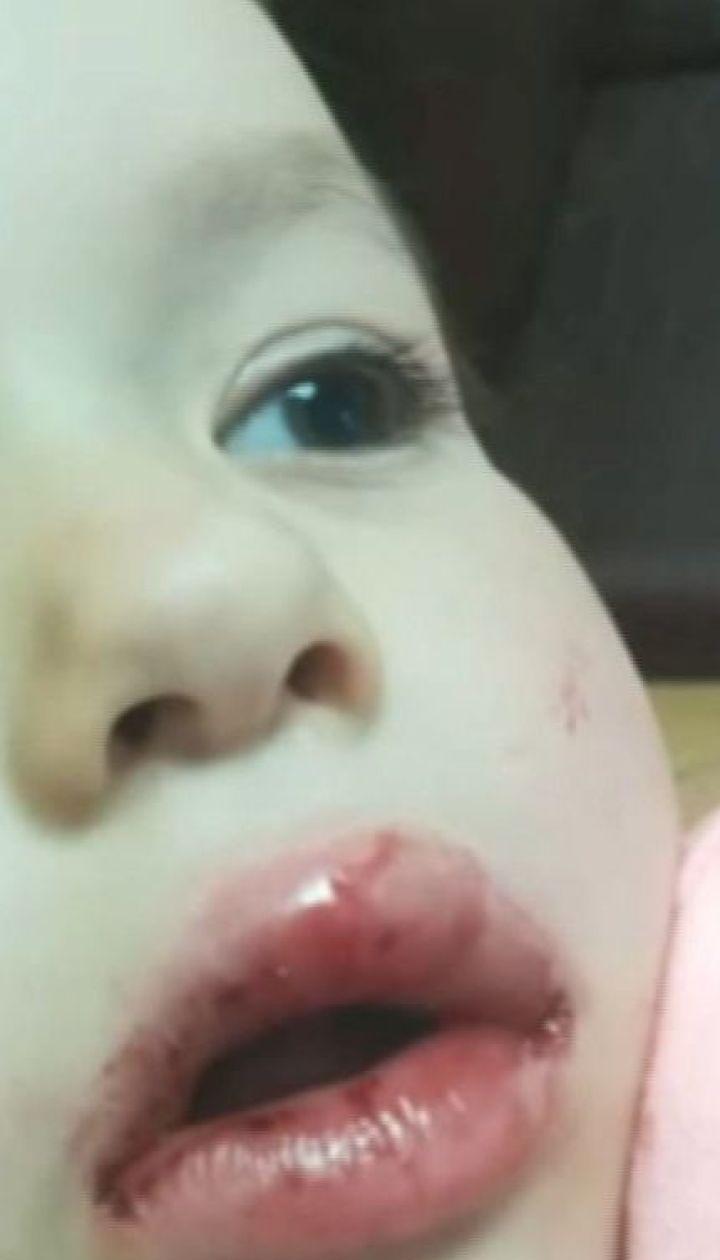 Численні забої та вибиті зуби: у Києві велосипедист збив дівчинку та втік