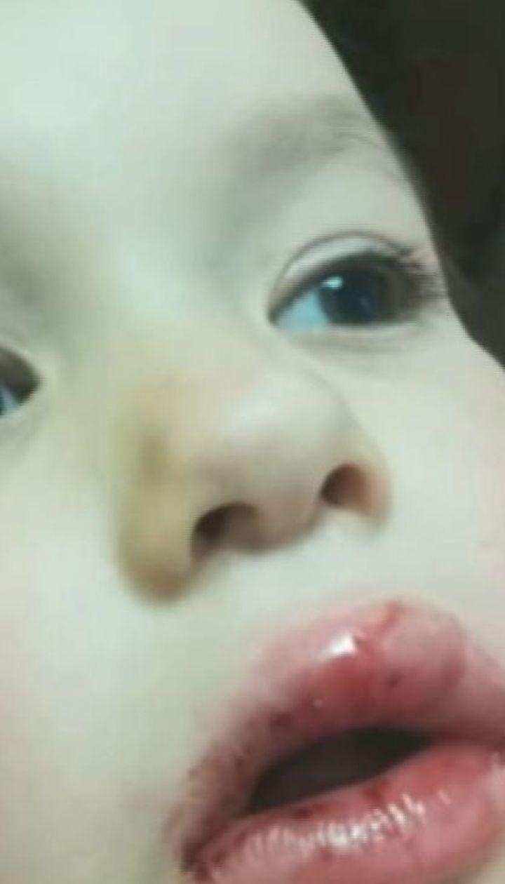 Многочисленные ушибы и выбитые зубы: в Киеве велосипедист сбил девочку и скрылся