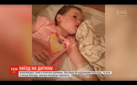 Вибиті зуби, зшита губа і численні забої: у Києві велосипедист наїхав на 5-річну дівчинку і втік