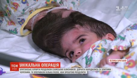 Британские врачи успешно разделили сиамских близнецов
