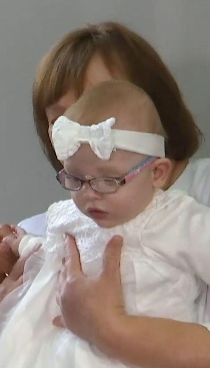 Львовские неонатологи впервые выходили ребенка с весом всего 480 граммов