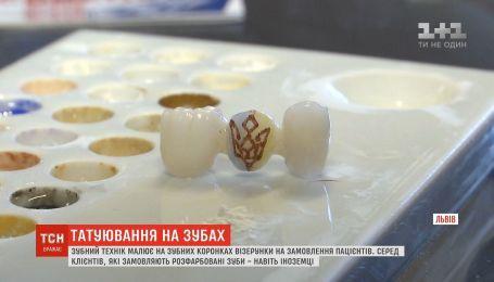 Во Львове зубной техник рисует на зубных коронках узоры на заказ пациентов