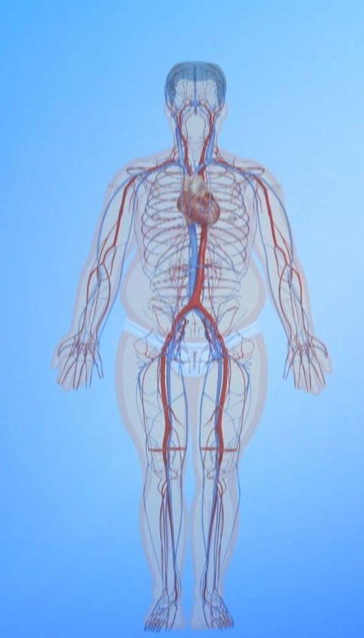 Ожиріння є однією з головних причин передчасної смерті у всьому світі