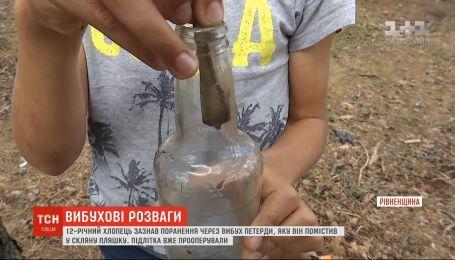 На Рівненщині підліток від вибуху петарди отримав важкі травми
