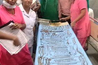 В Индии из желудка женщины извлекли драгоценные украшения на 1,6 млн гривен