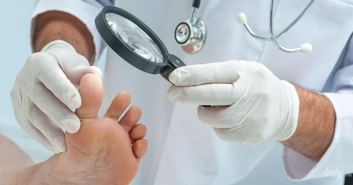 Осторожно, онихомикоз: как выявить и вылечить грибок ногтей