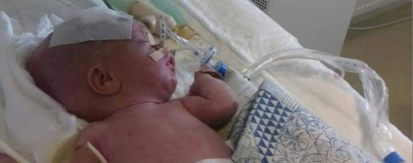 Волонтеры умоляют помочь спасти жизнь 2-месячному малышу из семьи Липовських