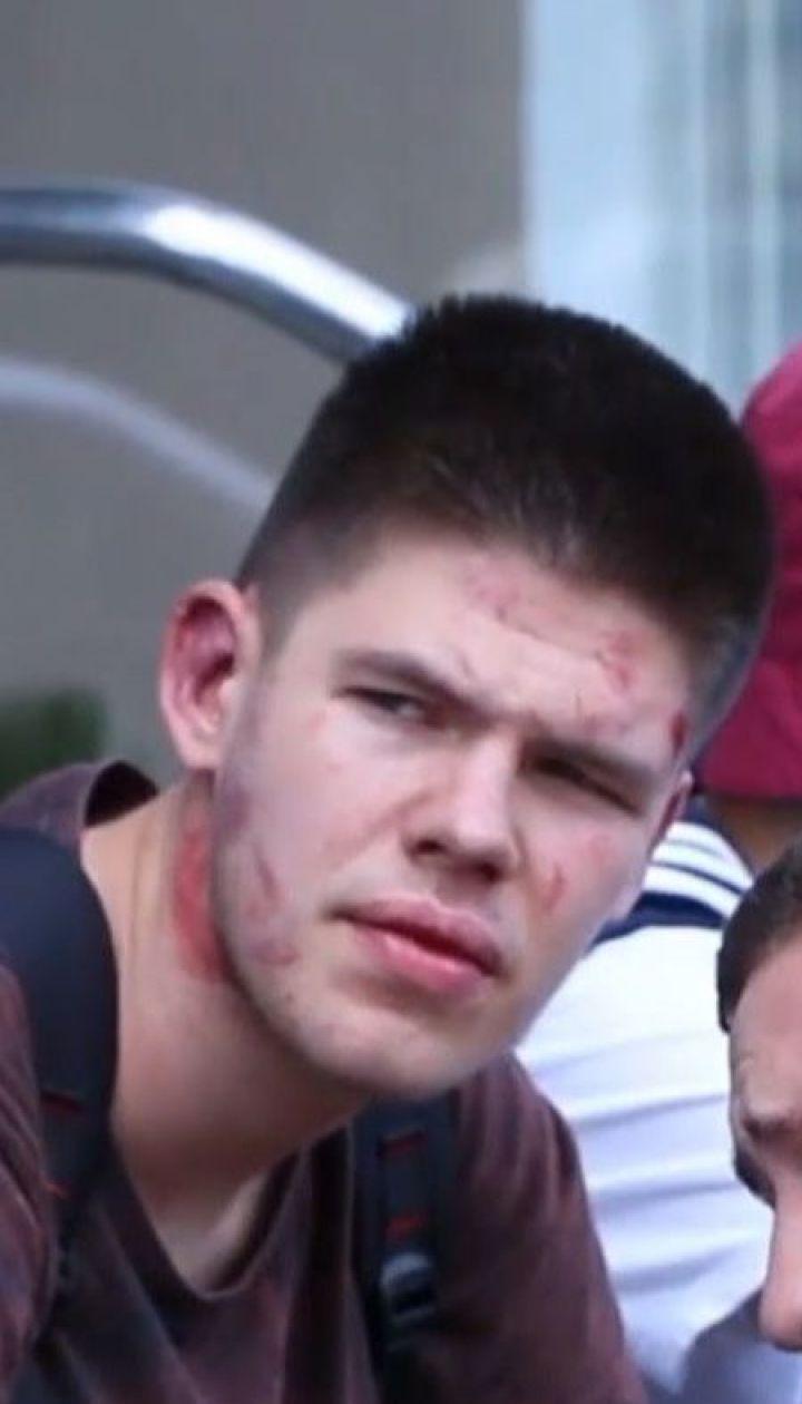 Одного з нападників, які жорстоко побили активістів у Дніпрі, затримала поліція