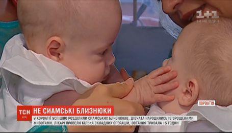 У Хорватії лікарі успішно розділили сіамських близнюків