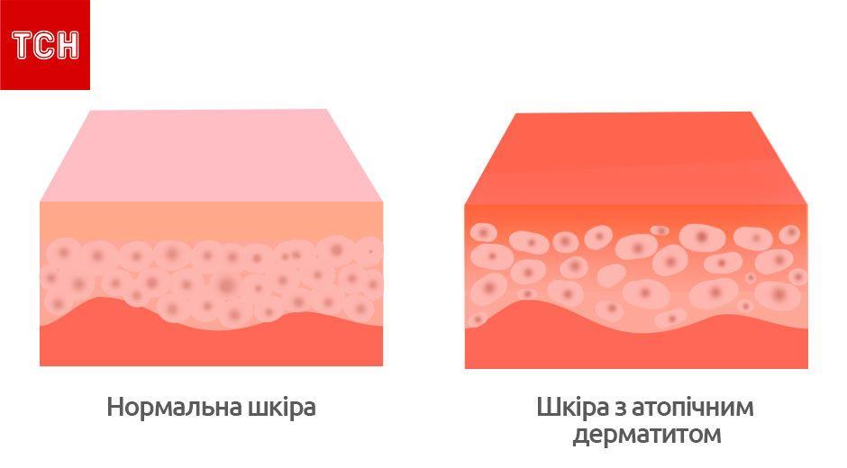 Атопічний дерматит, для блогів