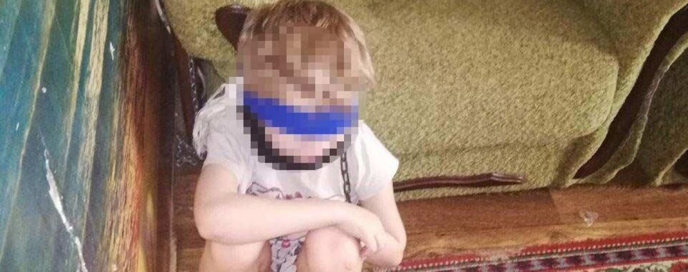 В Днепре опекунша посадила 8-летнего мальчика на цепь
