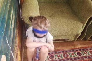 Ребенок на цепи: в Днепре приемная мать привязывала детей к кровати и закрывала рот
