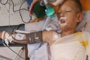 В Днепре дети во время игры подожгли 8-летнего мальчика