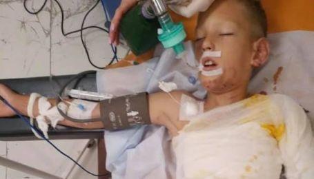 У Дніпрі діти під час гри підпалили 8-річного хлопчика