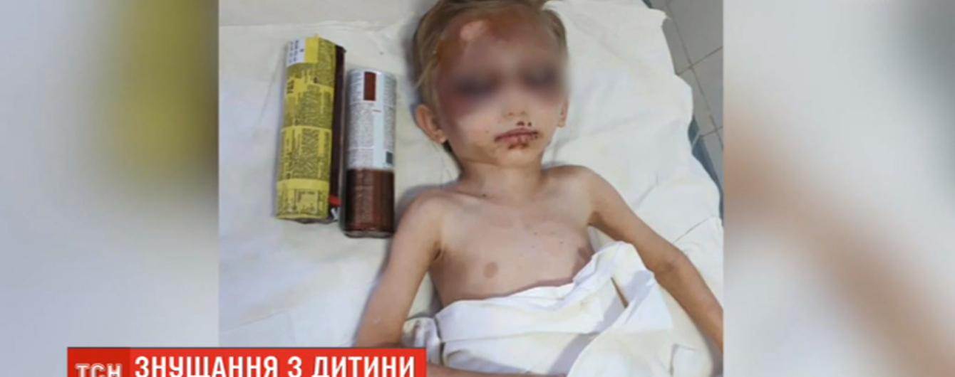 Ребенок едва выжил после пыток названной матери. Она била, колола иглами и морила голодом мальчика