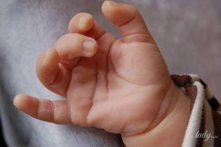"""Болезнь Нотта у детей: почему палец """"заворачивается"""" и как его разогнуть"""